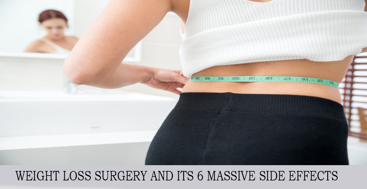 WEIGHT LOSS SURGERY AND ITS 6 MASSIVE SIDE ECTS