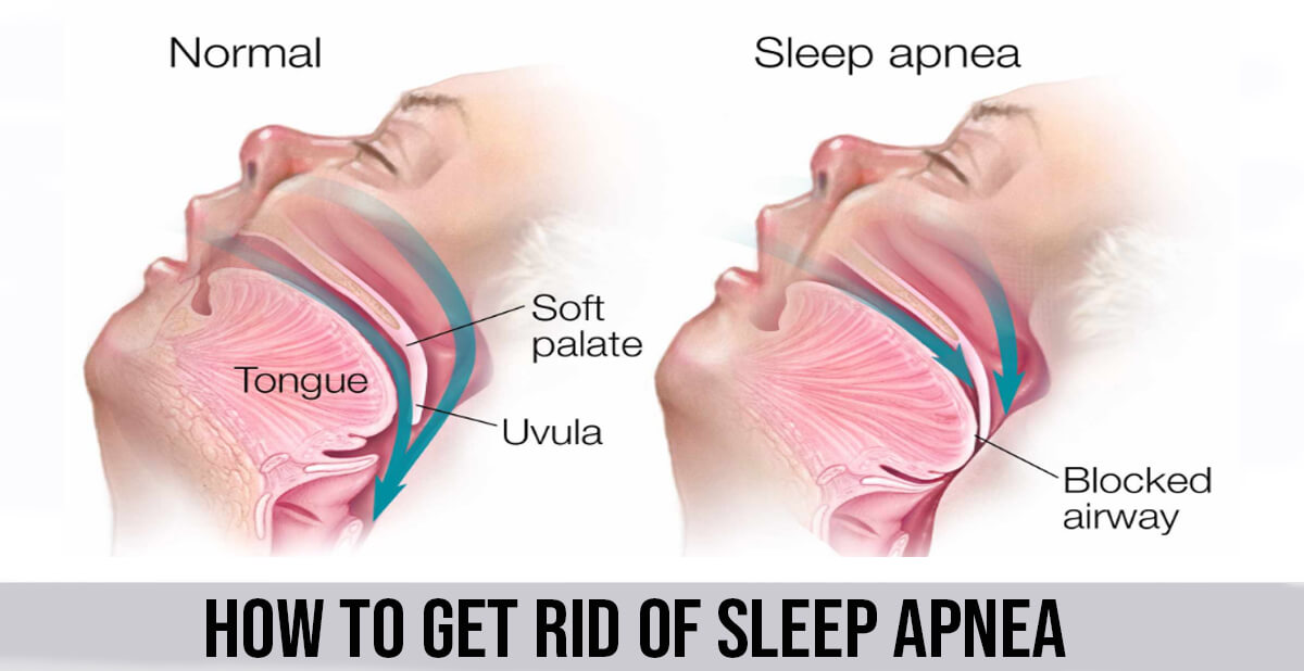 How to Get Rid of Sleep Apnea