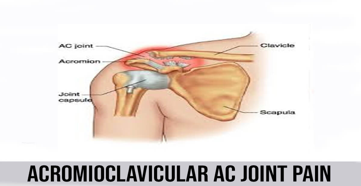 Acromioclavicular ac joint pain