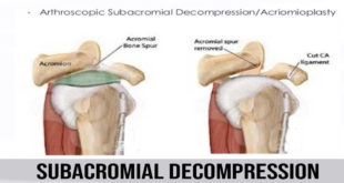 subacromial decompression
