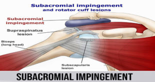 subacromial impingement Subacromial impingement disorder (SAIS) is the most widely recognized confusion of shoulder, representing 44– 65% of all dissensions of shoulder torment amid a doctor's office visit. SAIS envelops a range of subacromial space pathologies including fractional thickness rotator sleeve tears, rotator sleeve tendinosis, calcific tendinitis, and subacromial bursitis. The primary results of SAIS are practical misfortune and disability. Subacromial space is characterized by the humeral head poorly, the foremost edge and under surface of the front third of the acromion, coracoacromial tendon and the acromioclav-icular joint superiorly. The stature of room among acromion and humeral head ranges from 1.0 to 1.5 centimeters as observed on radiographs. Mediated between these two bony structures are the rotator sleeve ligaments, the long leader of the biceps ligament, the bursa, and the coracoacromial tendon. Any variation from the norm that exasperates the relationship of these subacromial structures may prompt impingement. The reasons for subacromial impingement As you lift your arm, the rotator sleeve ligament goes through the subacromial space. This is a restricted path like the carpal passage in your wrist. Subacromial impingement happens when the ligament gets on the bone at the highest point of this path. This can be caused by: 1. The bursa found between the ligament and the shoulder bone getting to be aroused and disturbed. This can be caused by one-time damage or an abuse of the shoulder 2. The ligament getting to be thickened, torn or swollen because of abuse or damage 3. Bone goads on the shoulder bone that bother the ligament 4. The bone is bended, as opposed to level, this is normally something you're conceived with, instead of something that creates after some time What are the side effects of subacromial impingement? Subacromial impingement can begin all of a sudden or step by step deteriorate which implies the side effects can be not quite the same as case to case. Be that as it may, manifestations of subacromial impingement can include: • Throbbing during the evening which influences your rest • Agony in the external side or best of your shoulder • Agony that deteriorates as you lift your arm • Shortcoming in your arm With subacromial impingements, your shoulder won't be solid. In the event that you do see any solidness in your shoulder, at that point it's presumable that you have a solidified shoulder instead of a shoulder impingement. At the point when to get medicinal counsel In the event that you have a torment in your shoulder that is influencing your typical exercises or one that hasn't left for fourteen days, come and see us. We will play out a physical exam of your shoulder, request that you move it in certain ways and get some information about the issues you have been having. With a shoulder impingement, it is normally genuinely clear with a physical exam so there won't be any requirement for imaging tests. Once we've discovered the reason for your shoulder torment, for this situation, bear impingement, we would then be able to recommend the best medications for you.