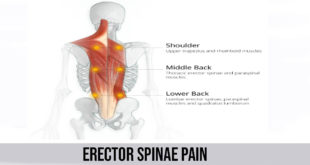 erector spinae pain