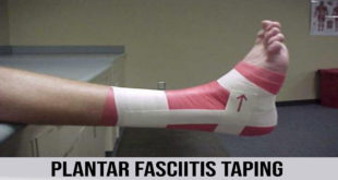 PLANTAR FASCIITIS TAPING IN 3 SIMPLE STEPS