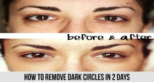 How To Remove Dark Circles in 2 Days