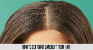 how to get rid of dandruff from hair If you are thinking about How to Get Rid Of Dandruff From Hair, you are requesting nearly the unthinkable thing because everything takes time for a good result. Use this method that is given below produce a good result. 1. Coconut Oil and Lemon Massage Coconut oil supports your hair, while lemon juice treats dandruff at home without utilizing hurtful synthetic substances. Given beneath is the least demanding dandruff home cure: Stage 1: Heat 2 tablespoons of coconut oil and blend it with equivalent measures of lemon juice. Stage 2: Massage your scalp tenderly with the blend. Stage 3: Leave it on for 20 minutes before washing if off with cleanser. 2. Fenugreek Pack as a Dandruff Remedy This home solution for dandruff utilizes fenugreek seeds. Stage 1: Drain the remaining water and squash the mollified seeds into a glue. Stage 2: Let the sit for around 70 minutes. Stage 3: wash it off with a gentle cleanser. 3. Curd Treating dandruff at home with curd is somewhat untidy yet exceptionally compelling. Technique for utilizing curd as a home solution for dandruff is given beneath: Stage 1: Apply some curd to your hair and all around Stage 2: Let it sit tight for around 90 minutes. Stage 3: clean it off with a cleanser that is gentle. 4. Preparing Soda is an incredible home solution for dandruff Dandruff treatment can be completed at home with preparing soft drink also. The solution for utilize heating soft drink for dandruff treatment is given beneath: Stage 1: Wet your hair somewhat. Stage 2: Keeping your hair wet, rub a spoonful of preparing soft drink on your scalp. Stage 3: Leave it on for 90-120 seconds before washing it 5. Tea Tree Oil Stage 1: Pour a couple of drops of tea tree oil on your scalp and spread it equitably. Stage 2: Let it douse for 5 minutes. Stage 3: Wash it off with a mellow cleanser. 6.How To Use Apple Cider Vinegar To Cure Dandruff Apple juice vinegar is a standout amongst the best home solutions for dandruff and hair fall. Figure out how to treat dandruff with apple juice vinegar beneath: Stage 1: Mix equivalent amounts of apple juice vinegar and water and put it aside. Stage 2: After a standard hair wash, apply the blend on your wet hair. Stage 3: Massage your scalp well and abandon it on for 15 minutes before washing it off. 7. Henna or Mehndi Fix dandruff with this basic henna cure. Henna relaxes your hair, while lemon juice works its ponder in dandruff treatment. Stage 1: Mix Henna or Mehndi with tea alcohol, curd and a dash of lemon juice. Stage 2: Set this blend aside for around 8 hours. Stage 3: Apply it on your hair Stage 4: Leave it on for around 2 hours and after that wash off altogether. 8. Neem Juice helps fix dandruff at home Stage 1: Grind a bundle of neem leaves in a nourishment processor to shape a thick glue. Stage 2: Apply this glue on your scalp and let it sit for 10 minutes or thereabouts. Stage 3: Wash it off with water. 9. Multani Mitti Hair Pack Multani mitti reestablishes hair wellbeing. This straightforward dandruff cure utilizing multani mitti gives you delicate, plush hair and sans dandruff hair. Stage 1: Make a thick glue utilizing multani mitti, water and a dash of lemon juice. Stage 2: Apply this blend on your hair and scalp and abandon it on for around 20 minutes Stage 3: Rinse it off with water. 10. Orange Peel Pack functions Orange strip is another dandruff cure that can be attempted at home. Peruse how to utilize orange strip pack for dandruff expulsion underneath: Stage 1: Throw an orange strip in a nourishment processor and press in some lemon squeeze as well. Stage 2: Grind every one of the fixings into a glue. Stage 3: Apply this glue on your scalp and let it sit for 30 minutes before washing it off with a mellow cleanser. Keep in mind, every one of these cures should be connected somewhere around thrice seven days for best outcomes; keep on doing as such till you see the distinction. Aren't you glad that you're presently enabled to do your own dandruff treatment at home?