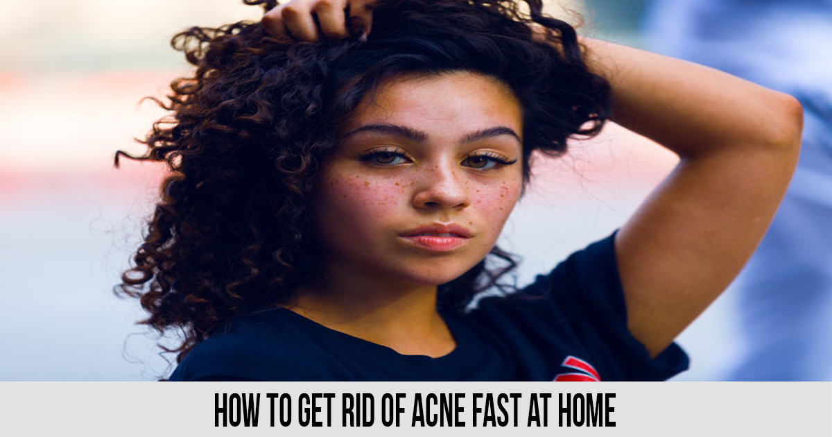 How To Get Rid of Acne Fast at Home