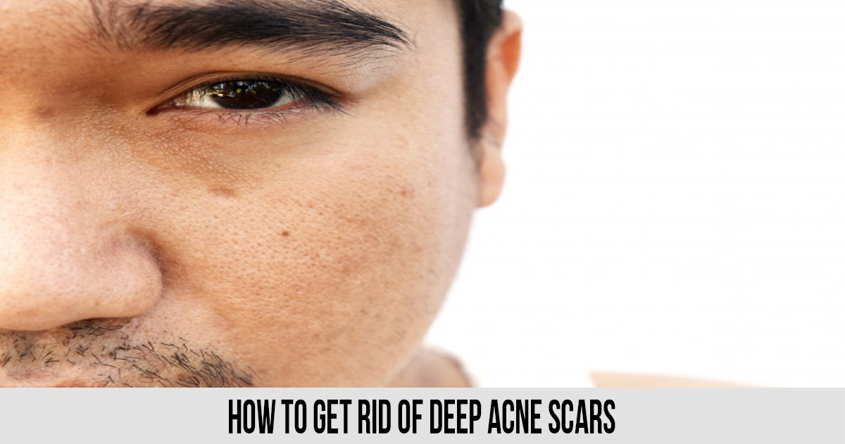 How To Get Rid of Deep Acne Scars