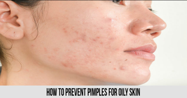 How to Prevent Pimples for Oily Skin