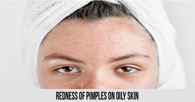 redness of pimples on oily skin