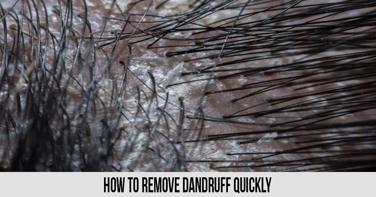 How to Remove Dandruff Quickly